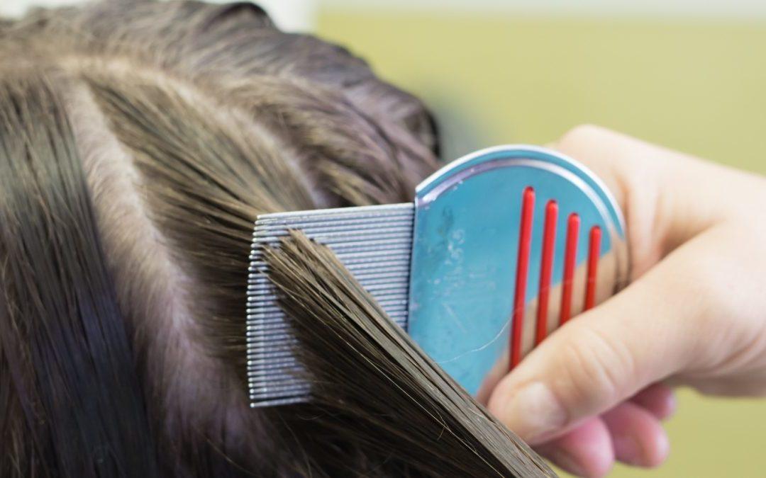 Bit Nasıl Temizlenir Saçtaki Sirkeyi Ne Öldürür Doğal Yöntemler